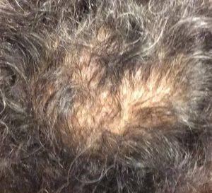 抜け毛・脱毛症の種類